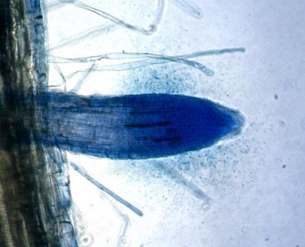 Blue bacteria cloud in grass root tip (1)